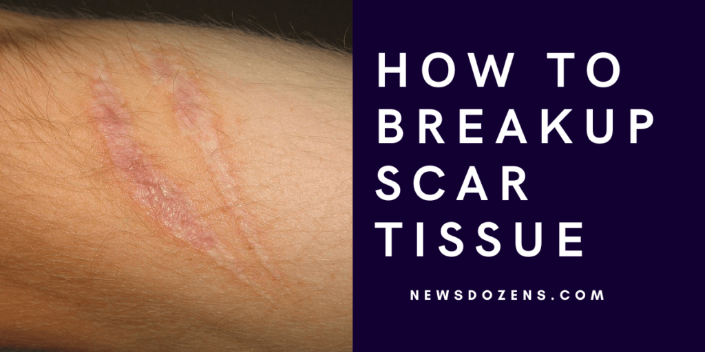The Millionaire Guide On How To Breakup Scar Tissue